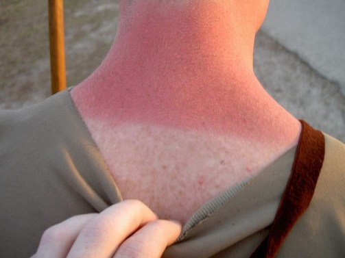 Stop going out in the sun without sunblock.