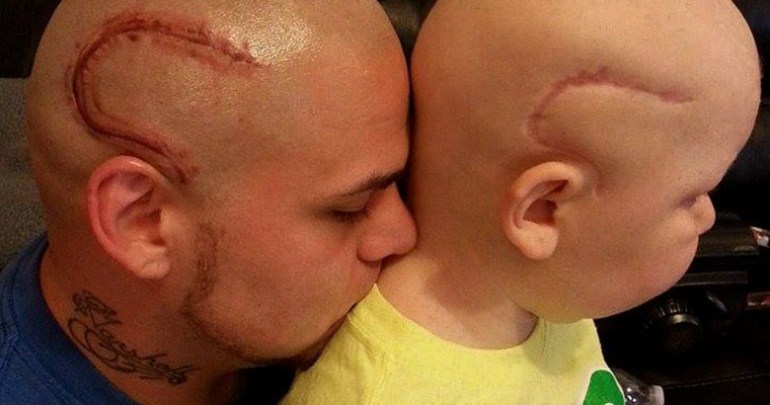 Supportive father gets a tattoo to match his brave young son's brain cancer surgery scar