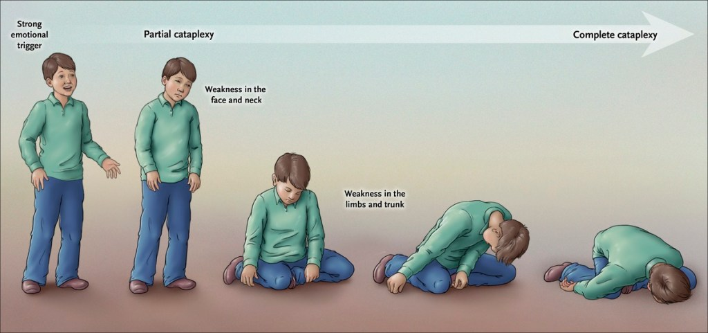 4. Experience cataplexy