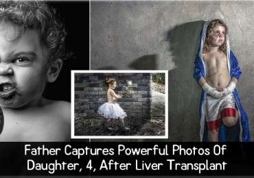 Father Captures Powerful Photos Of Daughter, 4, After Liver Transplant