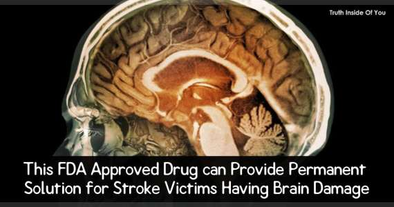 This FDA Approved Drug can Provide Permanent Solution for Stroke Victims Having Brain Damage