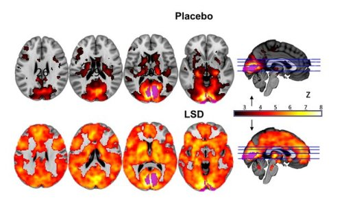brain on placebo or on LSD
