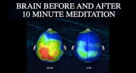 brain before and after 10 minute meditation