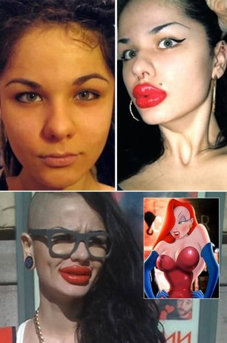 8. Woman with 100 lip injections