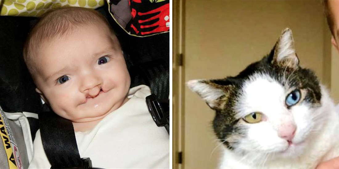 Bullied Boy Adopts Rescue Cat with Same Rare Eye Condition and Cleft Lip-5