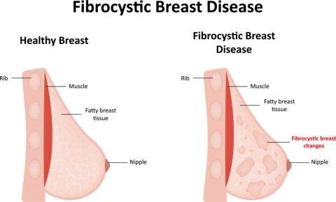 5. It leads to fibrocystic breasts