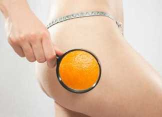 cellulite causes and treatment