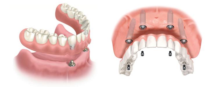 Snap Vs Hybrid Implant Denture