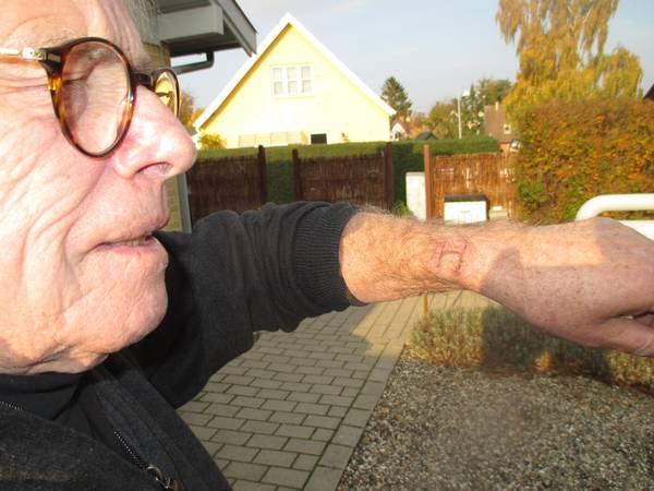 Apple-Watch-brændte-min-arm