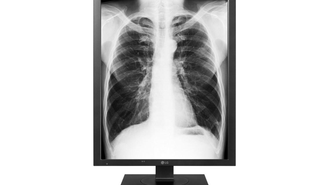 Diagnostic-Monitor-model-21HK512D_1