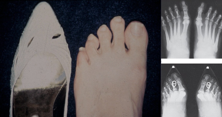 Varvaste asetus kitsas jalanõus