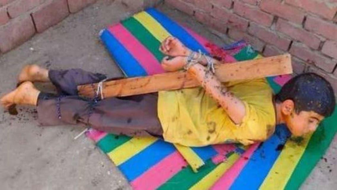 مصري يعذب ابنه بالعسل الأسود
