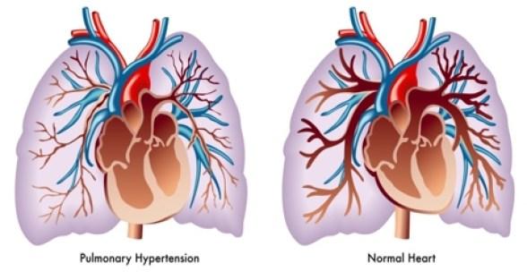Hipertansif Kalp Hastalığı