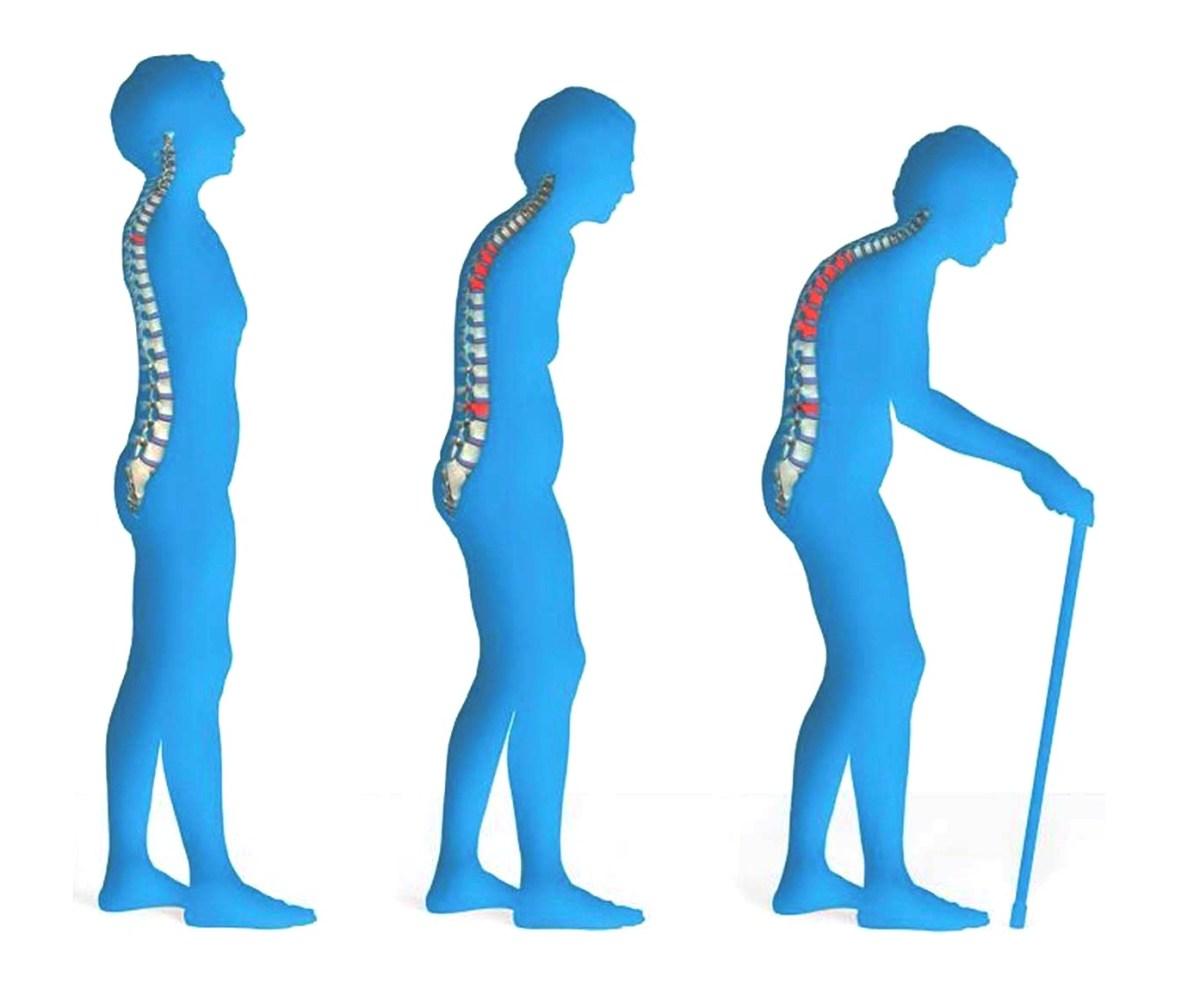 Bone Resorption (Osteoporosis)