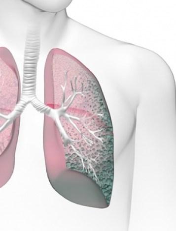 Lung Hardening (Idiopathic Pulmonary Fibrosis (IPF))
