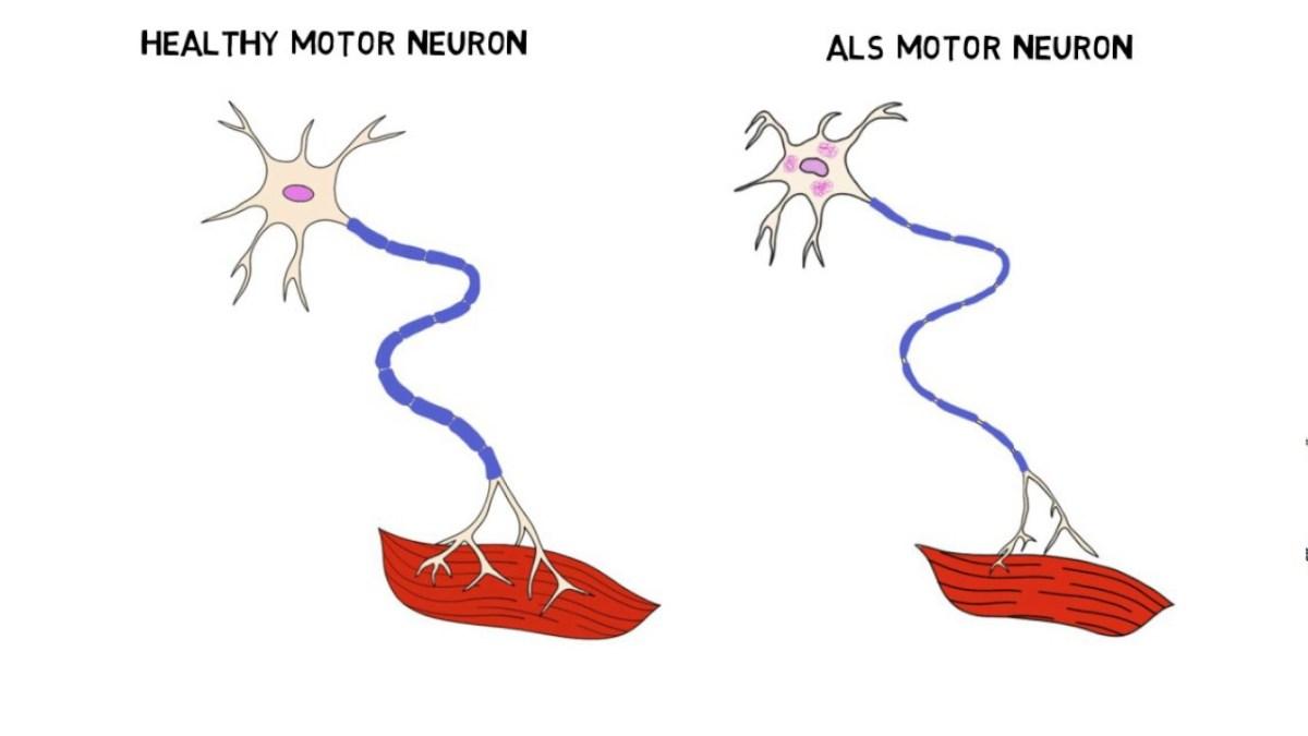 ALS (Amyotrofik Lateral Skleroz)