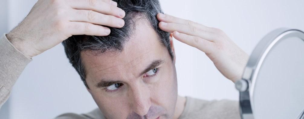 Hair Transplant Stages