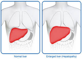 Liver Growth (Hepatomegaly),