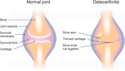 Osteoartrit (Kireçlenme)