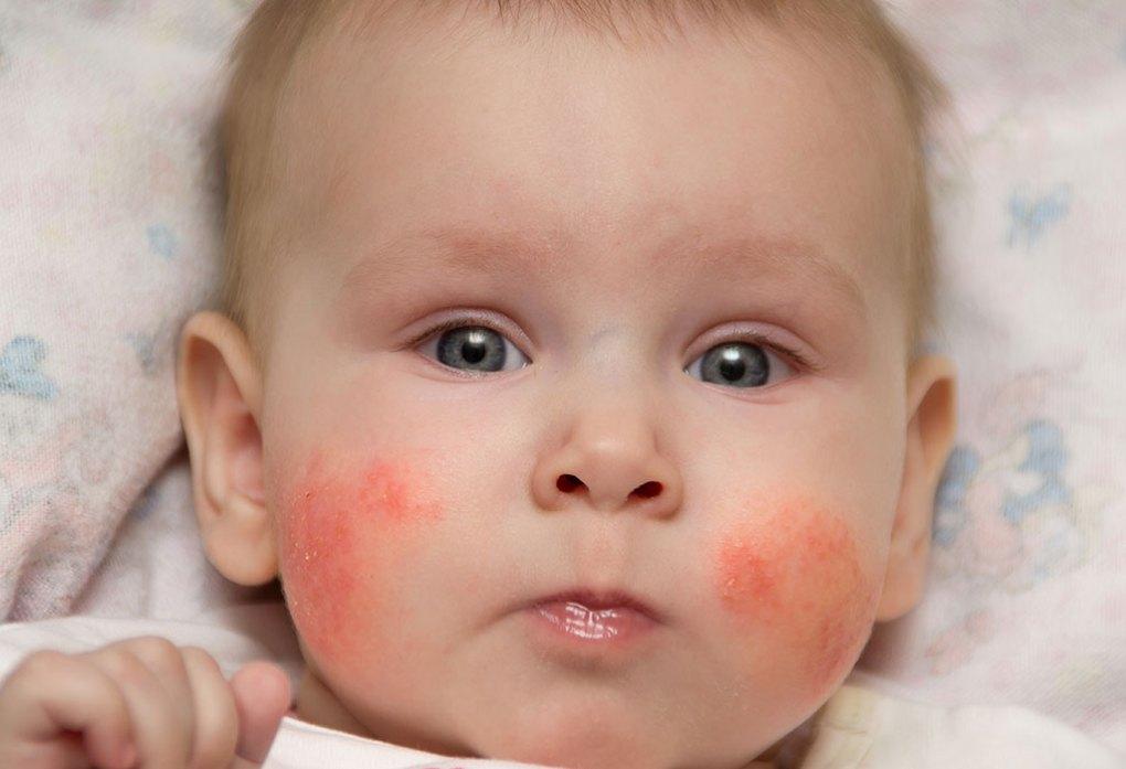 bebé con rojeces
