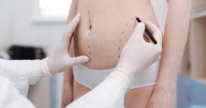 Lipoaspiração vai me deixar com cintura? por Dr. Luiz Anizio Wanna