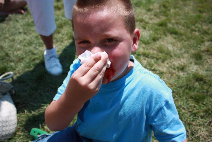 Sangramento no nariz: por que acontece? por Dr. Jamal Azzam