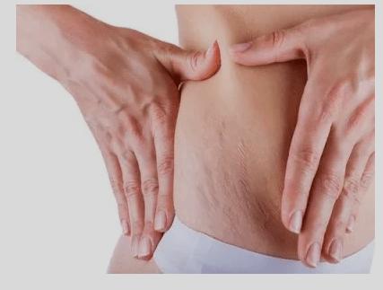 Tratamento para combater as estrias por Dra. Giselle Sanches
