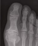 big toe oa