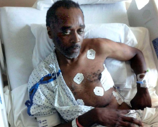 The federal lawsuit filed by Frank Baker includes a photo of him in the hospital after an officer kicked him on June 24, 2016, leaving him with seven fractured ribs and both his lungs collapsed. He required the placement of chest tubes, the lawsuit said. Photo courtesy of Gaskins Bennett Birrell Schupp LLP.