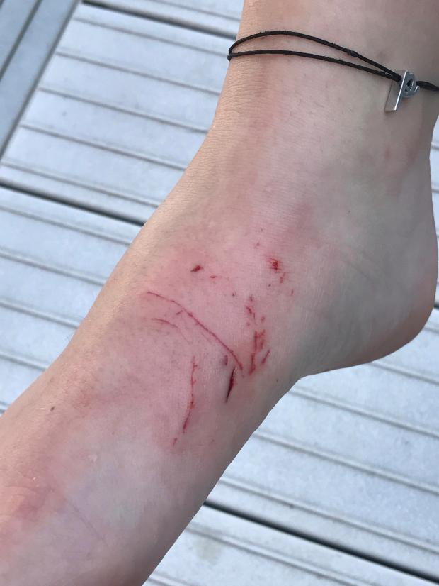Scratches on Paige Dougherty's ankle indicate where she was bitten by a muskie Sunday afternoon, Sept. 3, 2017, on her parents' dock on Island Lake north of Duluth. Dougherty is from Hermantown. (Courtesy Kirk and Wendy Haldorson)