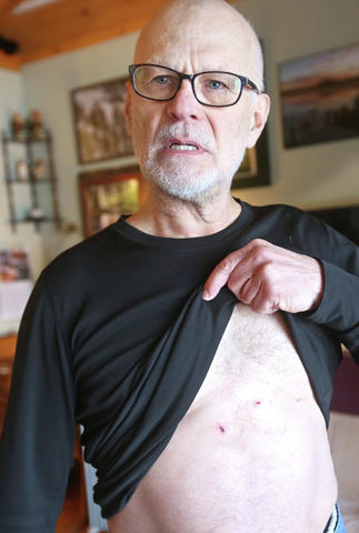 William Vagts lifts his shirt to reveal two puncture wounds he received from the bear while trying to rescue his dog. Vagts is also getting a series of rabies shots as a precaution. (Bob King / Duluth News Tribune)
