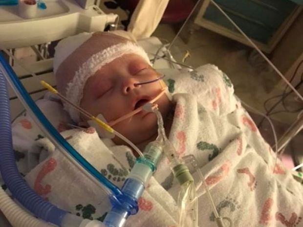Seven-week-old McKenna Hovenga was injured May 2, 2018, when she was struck by a softball during one of her father's games in Shell Rock, Iowa. She is being treated at St. Marys Hospital in Rochester, Minn. (YouCaring.com)