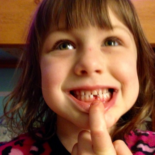 Lost a Tooth