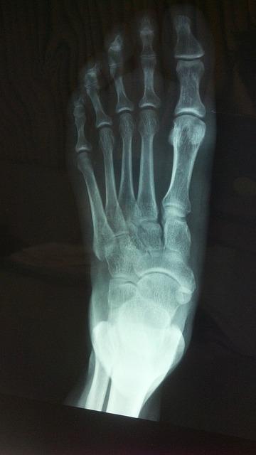 Break X Rays Arm Elbow