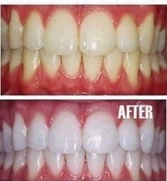 Whiten Your Teeth At Home Two Chums
