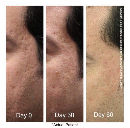 Fractional Co2 Laser for Skin Resurfacing in San Antonio