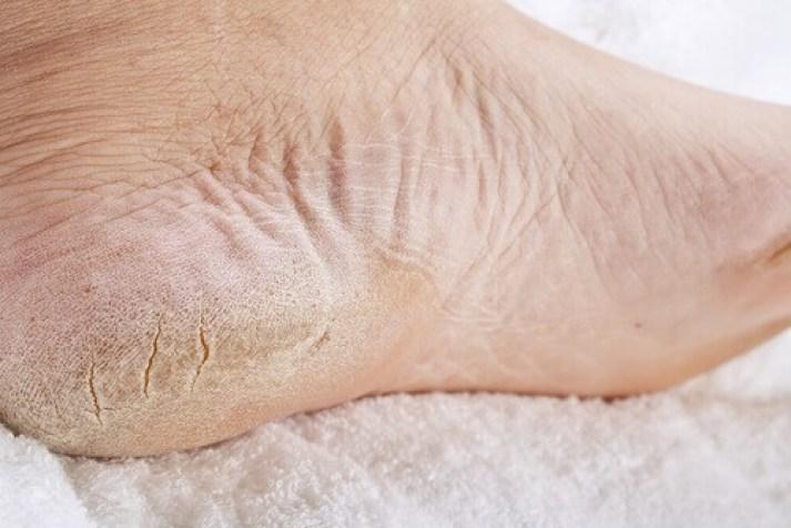 pieds-crevassés