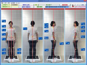 姿勢測定セミナー@ナチュラルメディカル