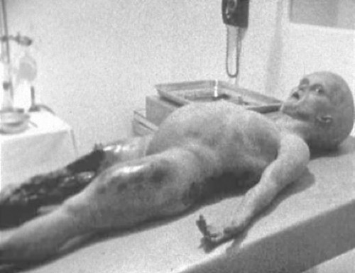 Image result for alien autopsy