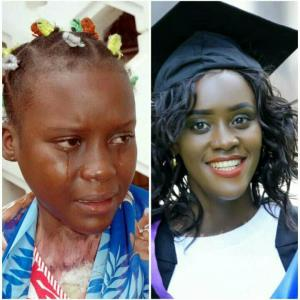 Aisha Nabukeera, left, with burns shortly after her abuse at age 13; and, at right, wearing her UCU graduation cap and gown.