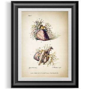 Vintage Anatomical Engraving Of The Human Heart Arteries. Digitally Enhanced & Unframed Medical Illustration Reproduction Print