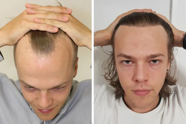 receding hairline treatment - mature hairline at a young age