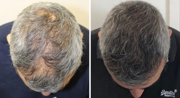 Thicker hair transplant to improve thinning hair