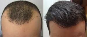 Hair transplant Bristol