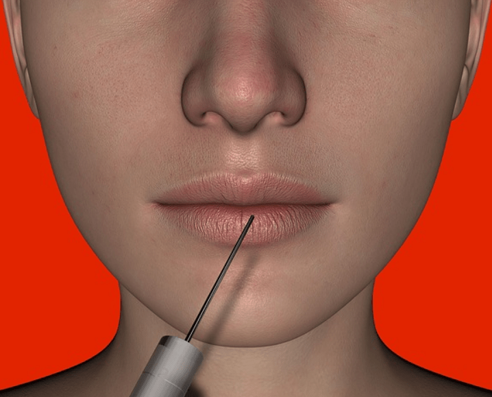 Top benefits of Botox injections
