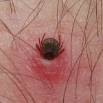 how to remove a human tick