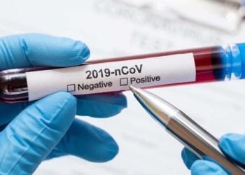 اوكرانيا تسجل 655 حالة إصابة جديدة بفيروس كورونا