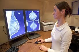 tumores seno 2