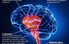 Convegno a Milano sul Parkinson. Costantini presenta la sua terapia a base di Vitamina B1. Può aiutare la tecnica basata sulle staminali