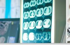 Schizofrenia: meno psicofarmaci e più conversazioni con psichiatra
